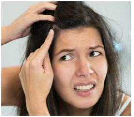5 Natural Ways To Get Rid Of The Sticky Dandruff