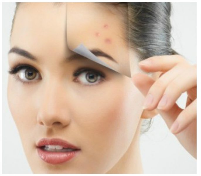 Top 5 Home Remedies You Need To Know To Get Rid Of Scars