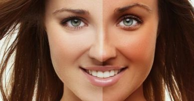 5 Natural Products To Remove Tan At Home