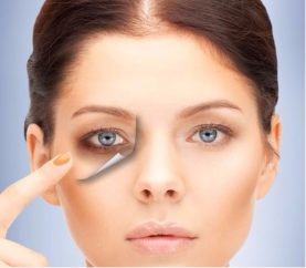 5 Ways To Remove Under Eye Dark Circles