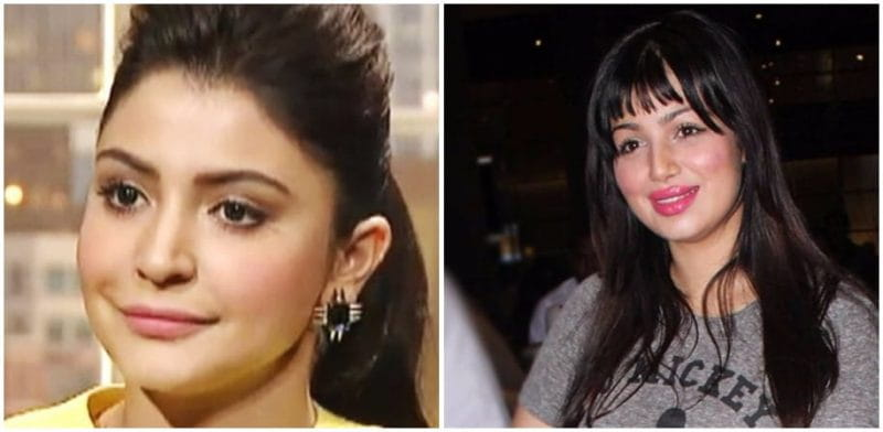 6 Bollywood Actresses With Lip Jobs Gone Wrong