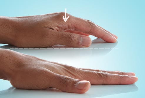 webmd_rf_photo_of_finger_stretch