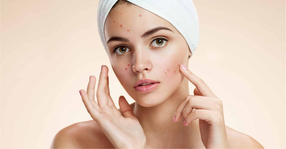 5 Ways To Tackle Common Skin Problems During Monsoons | Skin Care