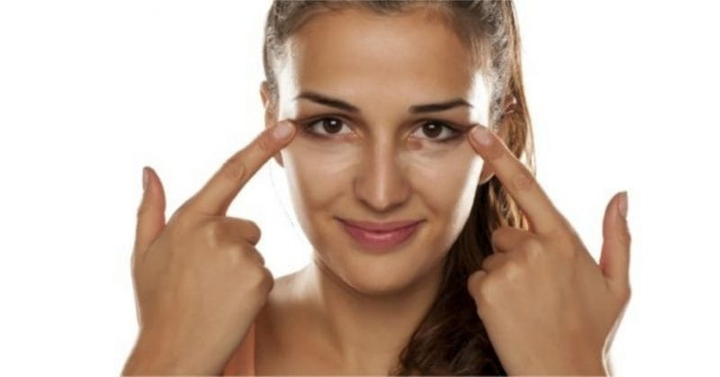 10 Home Remedies To Get Rid Of Dark Circles