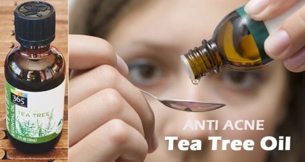 Anti Acne Tea Tree Oil