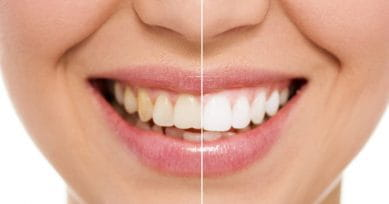 5 Home Remedies For Stained Teeth