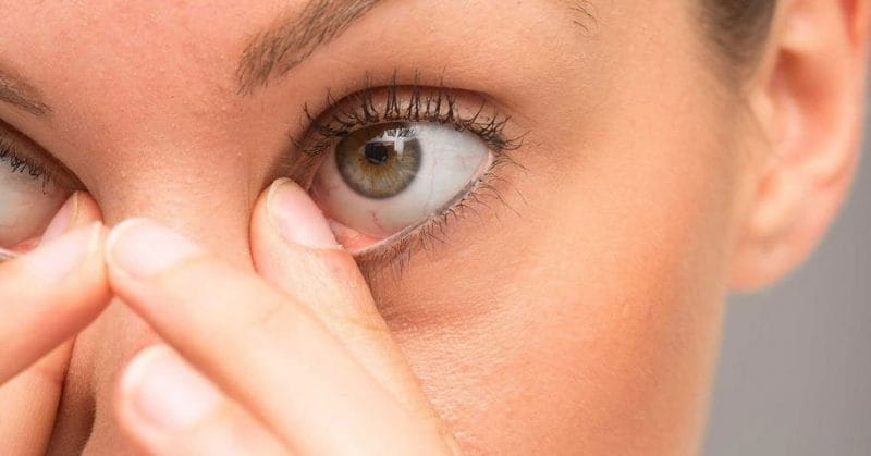 5 Tips To Get Rid Of A Stye In Your Eye