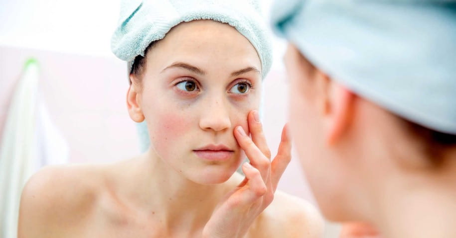 Did You Know There Is a Direct Relation Between Hormonal Imbalance And Skin Health?