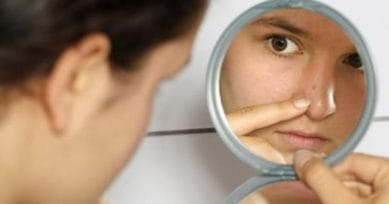 5 Effective Home Remedies For Stubborn Blackheads