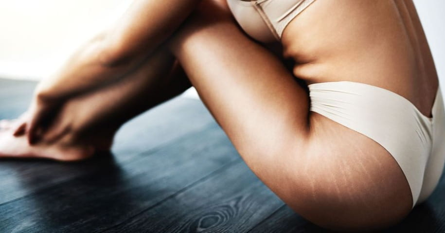 Get Rid Of Stretch Marks Naturally | Health And Fitness | New Woman