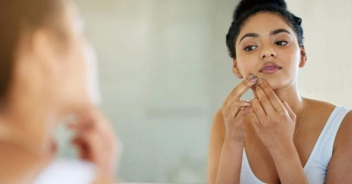 7 Surprising Home Remedies For Acne